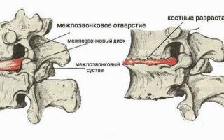 Остеохондроз — почему гимнастика полезна и описание патологии